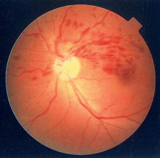 静脈がつまることで血液があふれ出します。中心部に出血がかかることで視力障害を起こします。 出血の